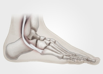 Lesão dos Tendões Fibulares | Dr. Rodrigo Macedo